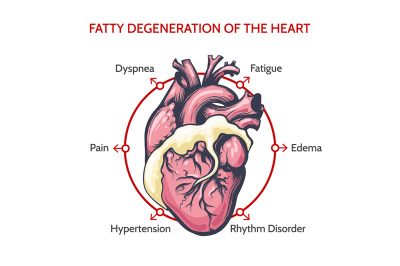 Fatty Degeneration of the Heart. Symptoms of desease illustration.