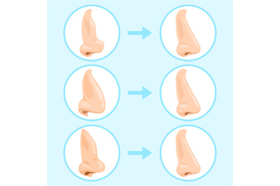Cartoon rhinoplasty surgery. Rhinoplasty before and after, nose plasti