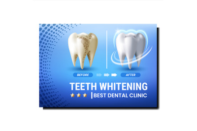 Teeth Whitening Creative Promotional Poster Vector