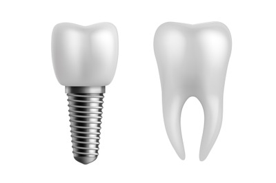 Dental implant and teeth. Realistic orthodontic elements. Human white