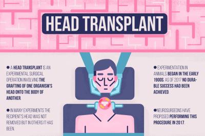 Human Head Transplant Infographics