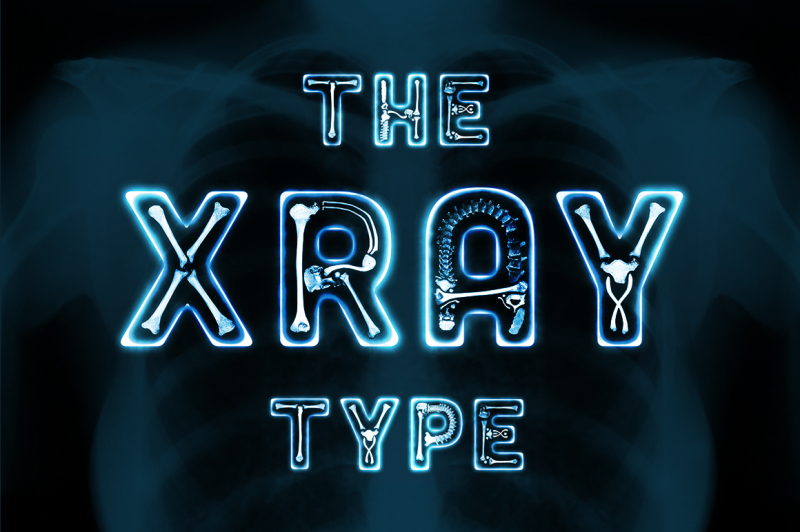 the-x-ray-type