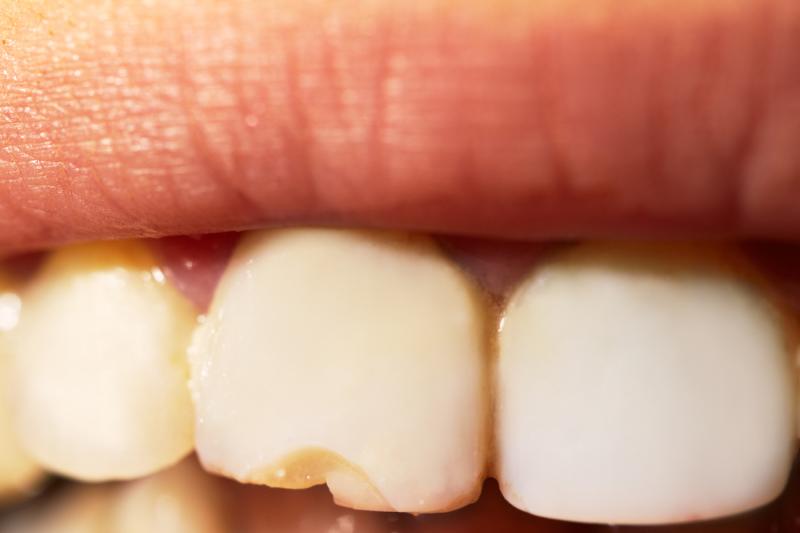 macro-shot-of-the-broken-tooth