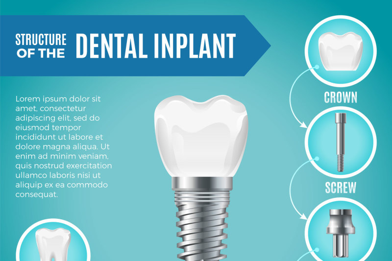 teeth-maquette-structural-elements-of-dental-implant-infographic-for