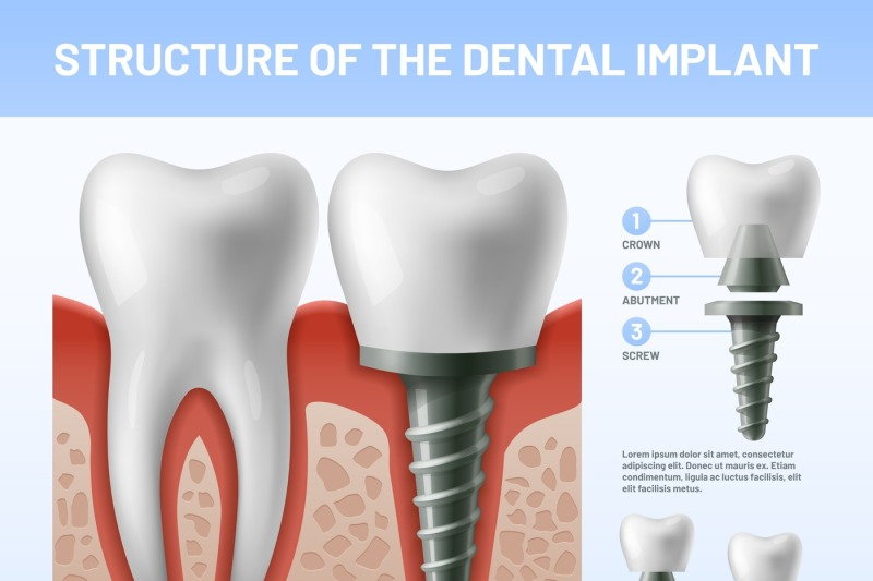 dental-teeth-implant-implantation-procedure-or-tooth-crown-abutments