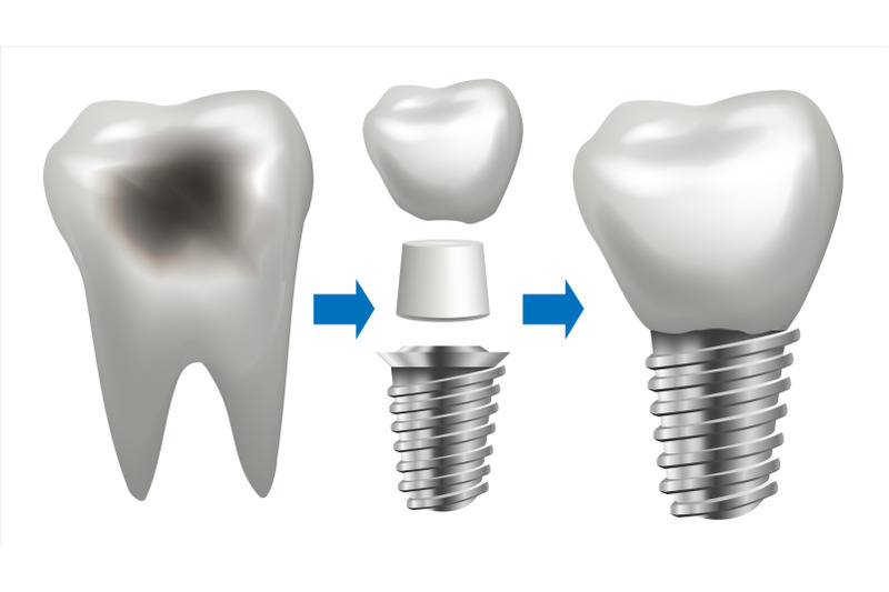 dental-implant-vector-tooth-with-caries-health-tooth-implant-dental-clinic-stomatology-flyer-realistic-isolated-illustration